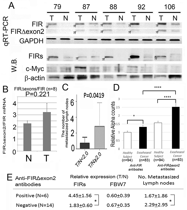 Alternatively spliced form of FIR (FIRΔexon2) was expressed in ESCC tissues and anti-FIRΔexon2 autoantibodies were detected in the serum of the patients.
