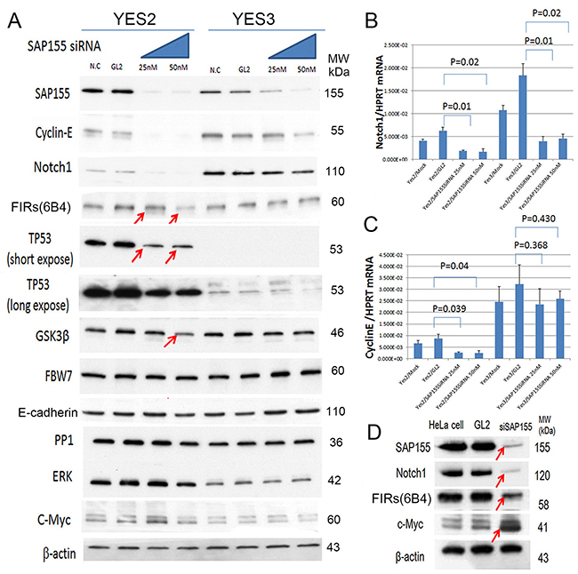 SAP155 (SF3b1) was required for cyclin E and Notch 1 mRNA expression in ESCC cells.