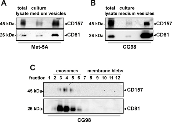 Analysis of CD157 expression in vesicles released by mesothelial cells.