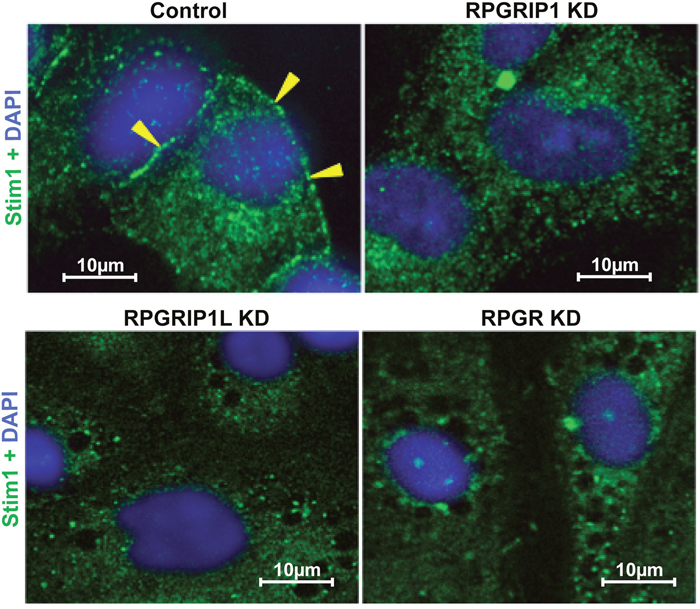Defect in STIM1 localization to the ER-PM junction in knockdown (KD) cells.