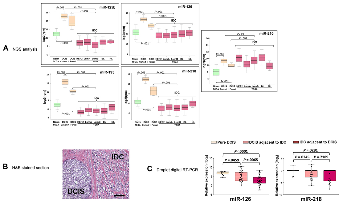 The expression of miR-126 and miR-218 is elevated in pure DCIS but not in DCIS adjacent to IDC.
