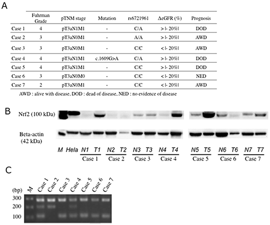 Expression of Nrf2 and genotyping of rs6721961 SNP.