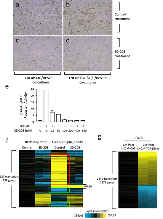 Prostate stromal TGF-β signaling induces profound changes in the co-cultured LNCaP cells.