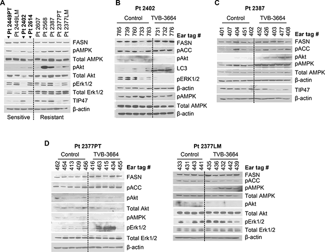 Expression of FASN and activation of FASN-associated oncogenic pathways in PDX models.