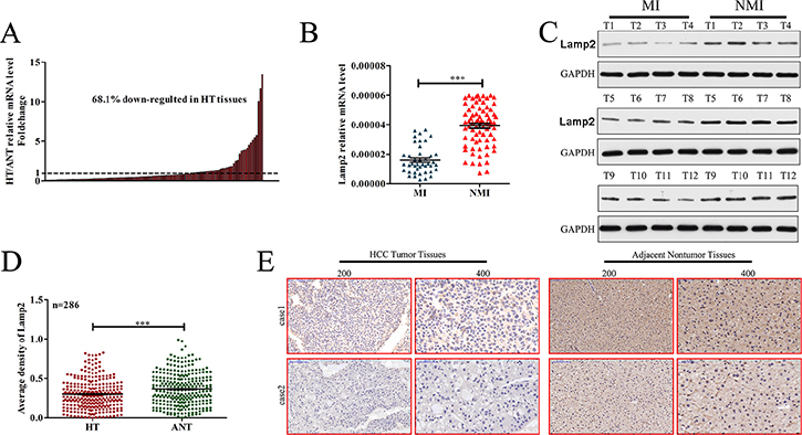 Lamp2 expression is frequently decreased in human HCC tissues.