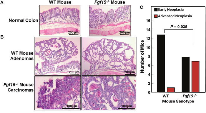 Advanced colon neoplasia in FGF15-deficient mice.