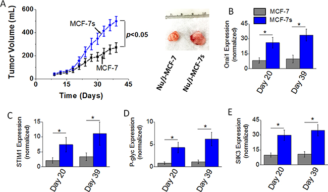 Tumorigenicity of MCF-7 and MCF-7s breast cancer cells.
