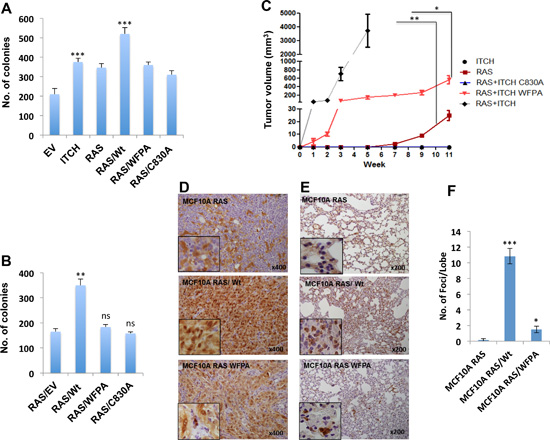 ITCH enhances tumorigenicity of H-RAS transformed MCF10A cells.