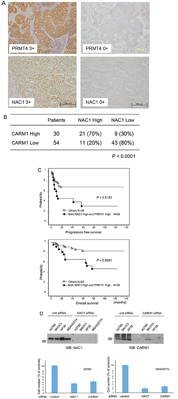 Co-upregulation of CARM1 and NAC1 in ovarian carcinoma tissues.
