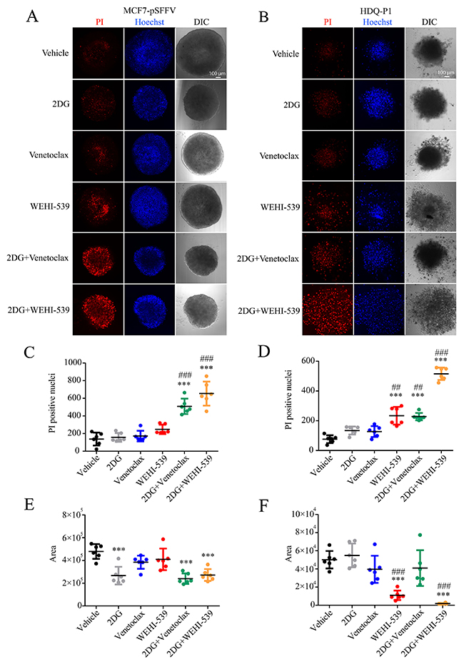 Combination treatments of 2DG with Venetoclax or WEHI-539 effectively increase the number of dead cells in breast cancer spheroids.
