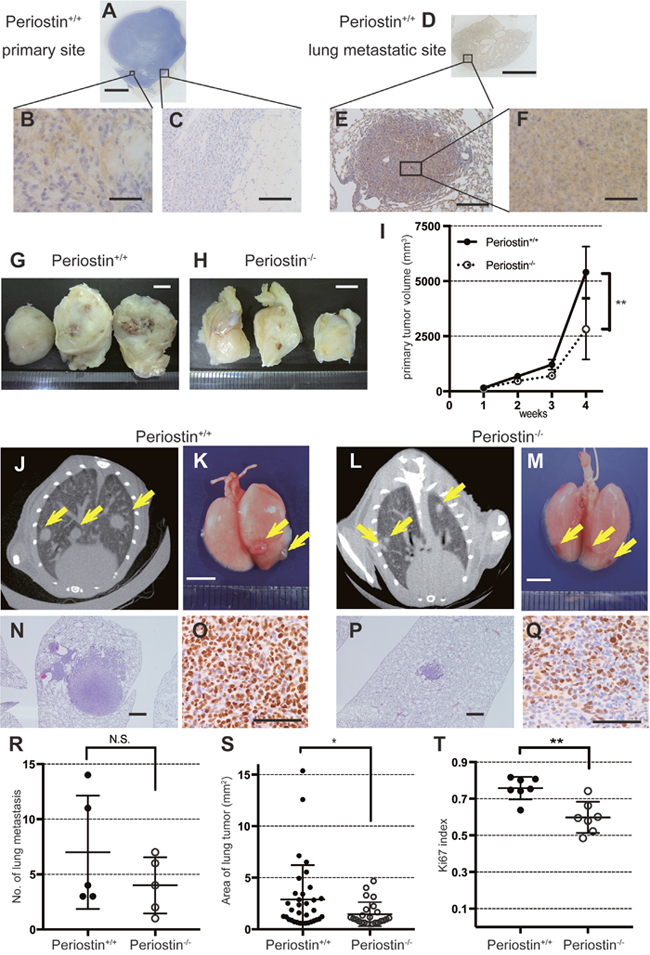 Periostin promotes lung-cancer proliferation in vivo.