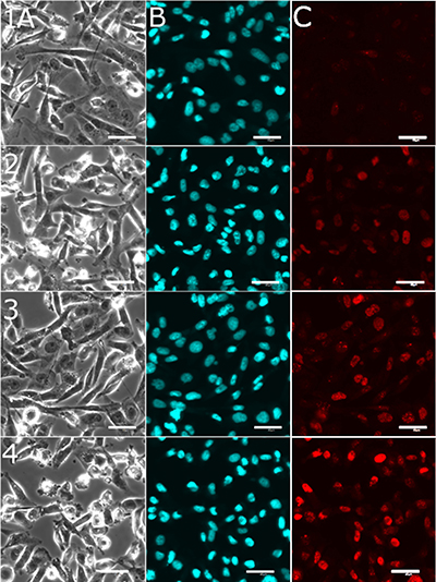 Representative confocal microscopic images recorded for detection of DNA damage in cancerous MDA-MB-231 cells.