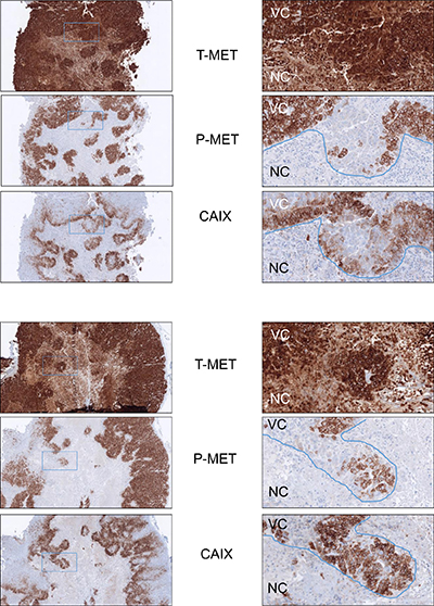Decreased MET phosphorylation in hypoxic areas of GTL16 tumor xenografts.