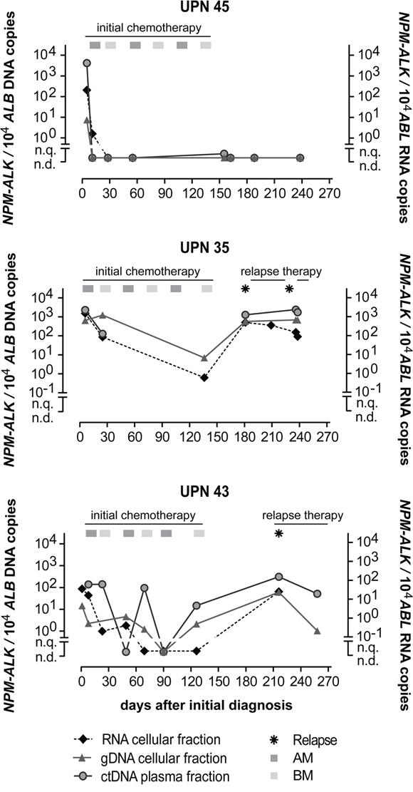 Quantification of NPM-ALK in ALCL patients.