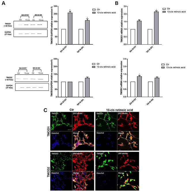 TMOD1 and TMOD2 have different expression levels and cellular localization in neuroblastoma cell lines.