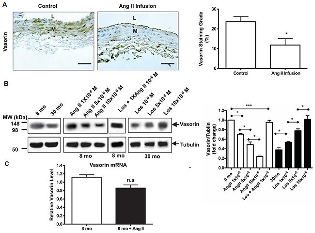 Age decreases vasorin expression in aortic wall or VSMCs via Ang II signaling.