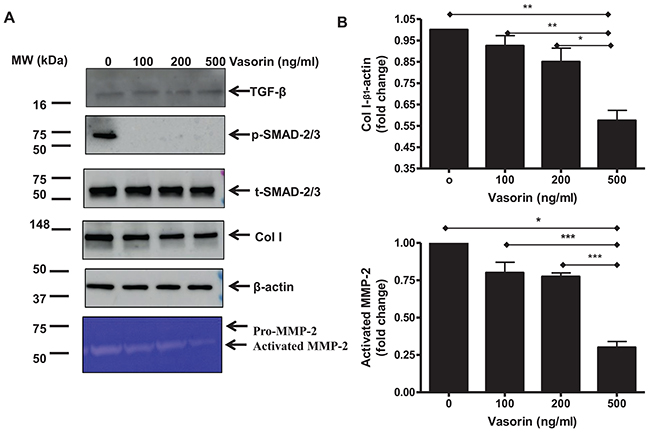 TGF-β1 downstream profibrotic effects in old VSMCs regulated by recombinant human vasorin proteins.