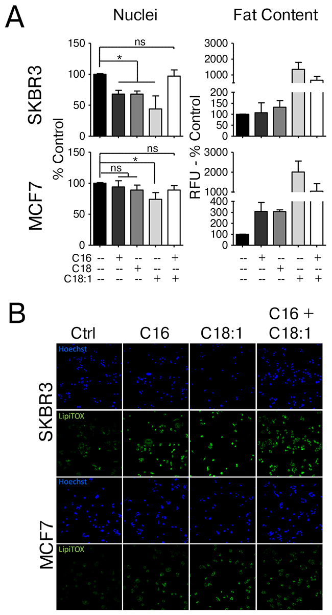 HER2/neu-positive SKBR3 and HER2-normal MCF7 cells differ in their response to saturated fatty acid supplementation.