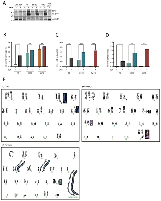 TRF2ΔBΔM expression induces chromosome end-to-end fusions in all inducible cell lines.