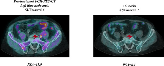 Early FCH-PET/CT complete response on abiraterone treatment.