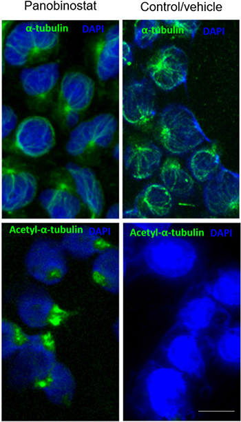 Panobinostat cytotoxicity is linked to α-tubulin acetylation.