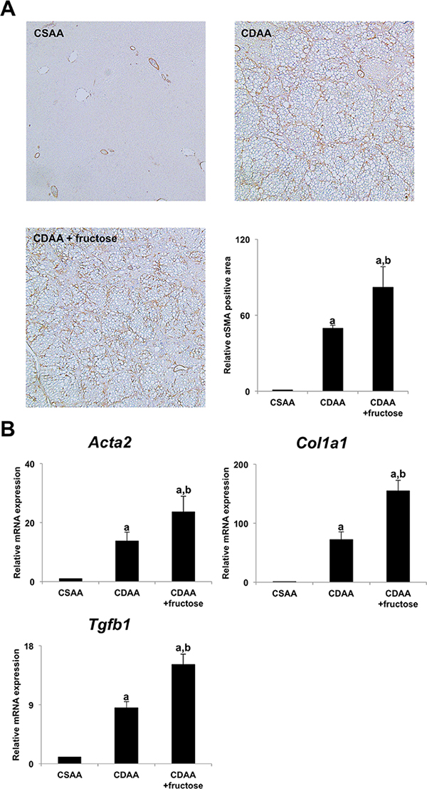 Fructose accelerated hepatic stellate cells-induced liver fibrogenesis.