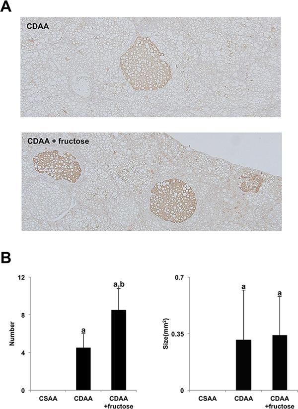 Fructose augmented CDAA-induced hepatocarcinogenesis.