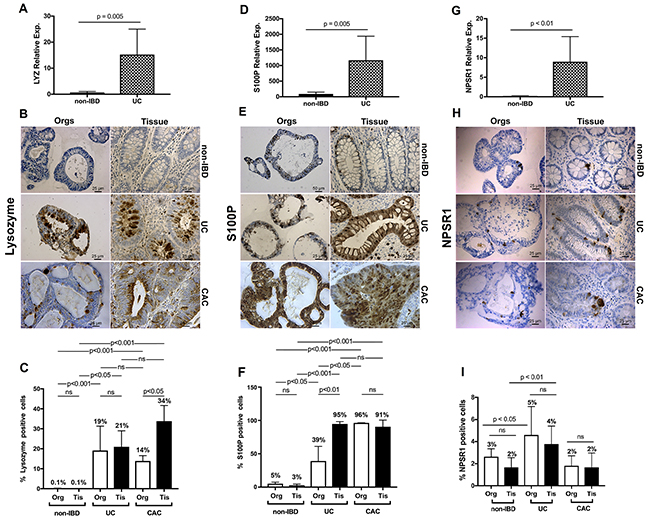 qRT-PCR and IHC validation of enrichment delineated by ChIP-seq and transcriptome analysis for UC and extended to colitis-associated cancer.