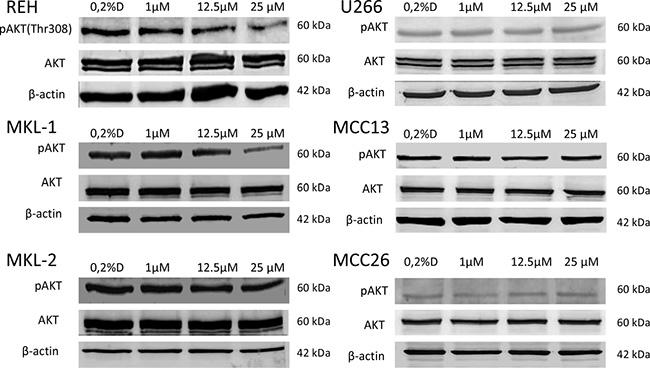 Western blotting of AKT phosphorylation (p-AKT) in idelalisib treated cell lines REH, MKL-1, MKL-2, MCC13, MCC26 and U266.