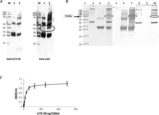 trT2-50 binds actin.