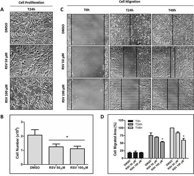 Inhibition of MDA-MB-231 cell proliferation and migration by resveratrol.