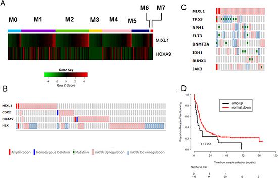 High MIXL1 expression denotes a distinct subset of AML.