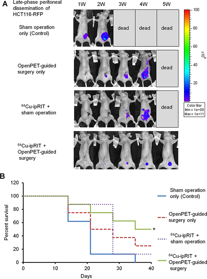Combination of 64Cu-ipRIT and OpenPET-guided surgery in a late-phase peritoneal-dissemination model with HCT116-RFP cells.