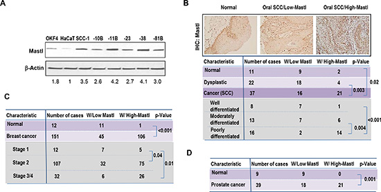 Overexpression of Mastl in cancer.