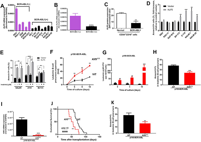 Klf5 is a tumor suppressor of BCR-ABL transformed leukemogenesis through promotion of apoptosis of B precursor cells.
