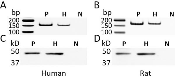 The expression of GHRH receptor (GHRH-R) in the primary human hepatocytes and rat hepatocytes.