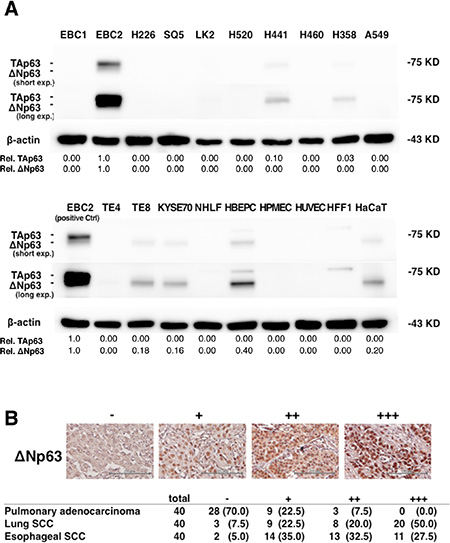 ΔNp63 expression in lung and esophageal SCC and pulmonary adenocarcinoma.