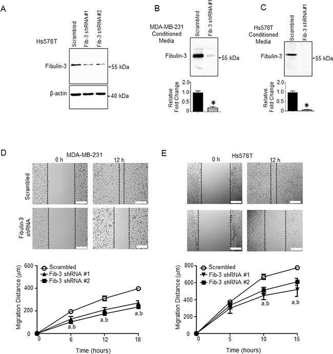 Fibulin-3 knockdown in TNBC cells decreases TNBC cell motility.