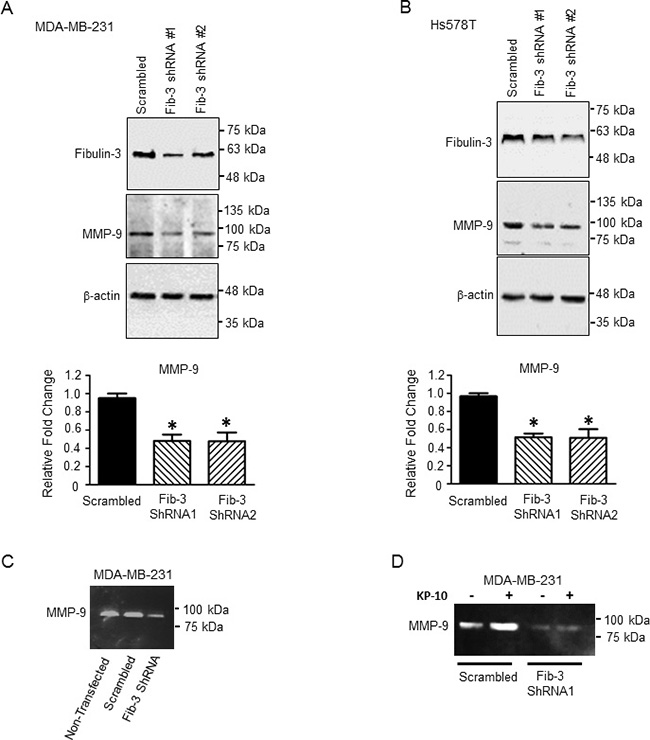 Downregulation of fibulin-3 in TNBC cells decreases the expression and activity of MMP-9.