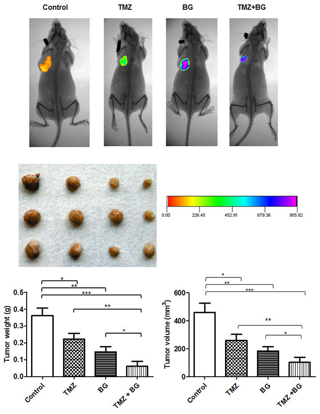 BG increases TMZ inhibitory effect on breast cancer growth in vivo.