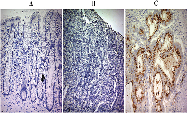 Prokineticin 2 (PROK2) protein expression in colorectal cancer (CRC) tumor tissues and adjacent normal tissues.