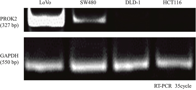 Prokineticin 2 (PROK2) expression in human colorectal cancer (CRC) cell lines (LoVo, SW480, HCT116, and DLD-1).