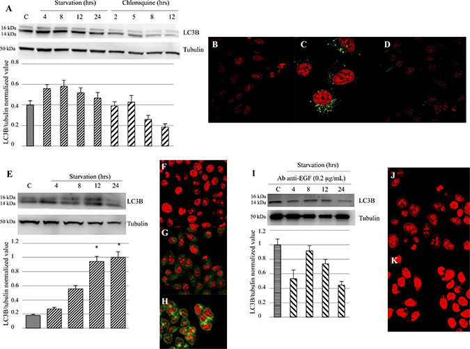 Evaluation of LC3B activation and expression.