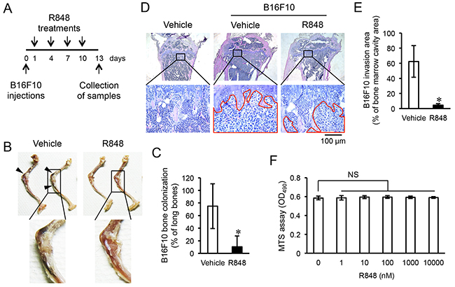R848 inhibits invasion of epiphyseal bone by B16F10 cells.