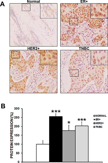 CAPER expression is induced in human breast cancer specimens.