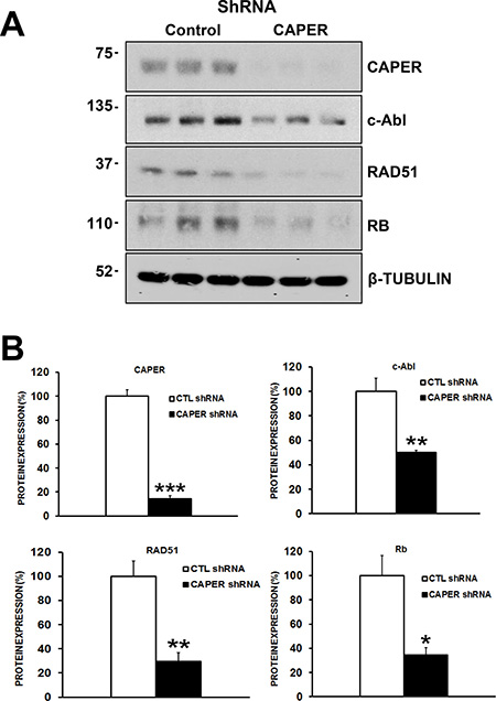 CAPER Knockdown decreases the levels of c-Abl, RAD51 and retinoblastoma proteins, essential proteins involved in homologous recombination repair of DNA in MDA-MB-231 cells.