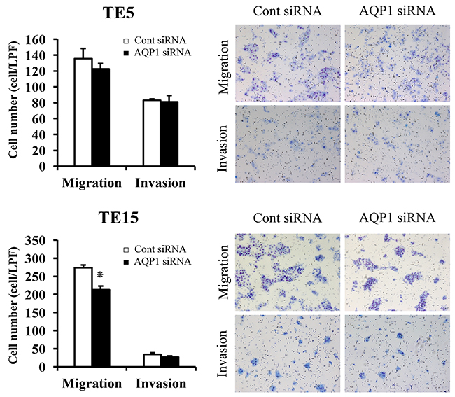 The migration and invasion assay with AQP1-depleted TE5 and TE15 cells.