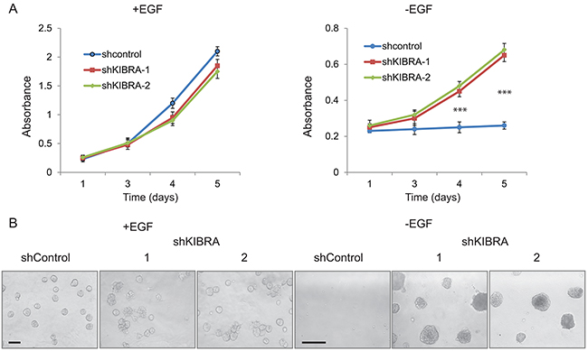 KIBRA knockdown induces growth factor-independent cell proliferation.