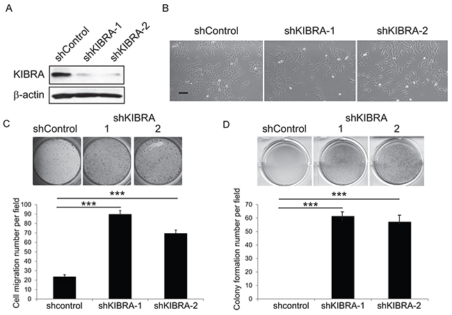 Loss of KIBRA function induces EMT and mammary epithelial cell transformation.