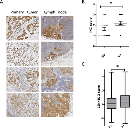 Expression of CSNK1D in primary tumors and metastatic lymph nodes.